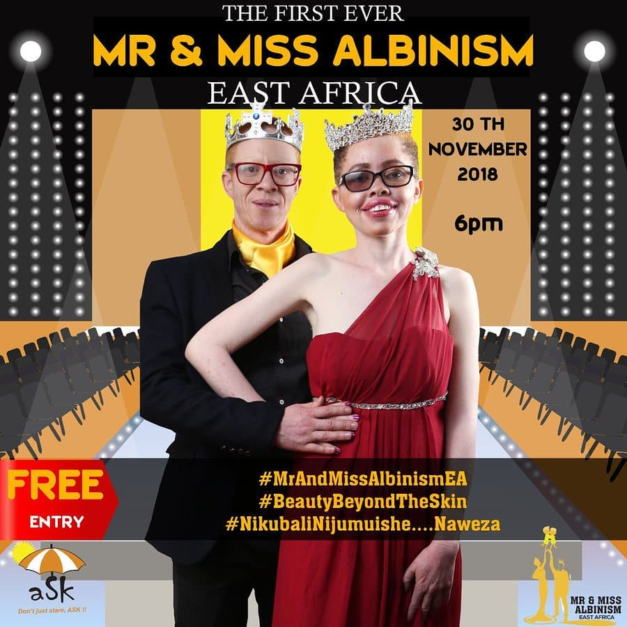 mr and miss albinism